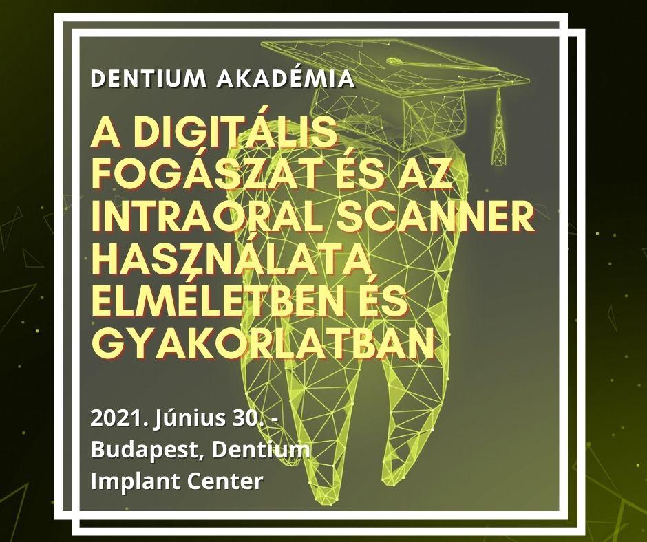 A Digitális fogászat és az intraoral scanner használata elméletben és gyakorlatban